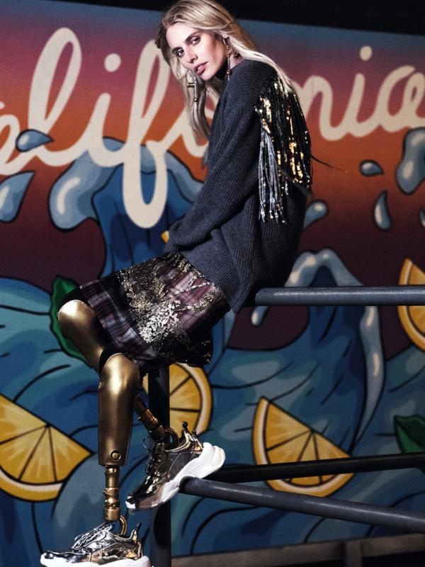 """Devojka sa zlatnim nogama"" Loren Vaser - o novim idealima lepote"